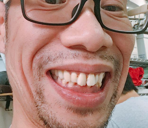 が 芸能人 歯 ボロボロ