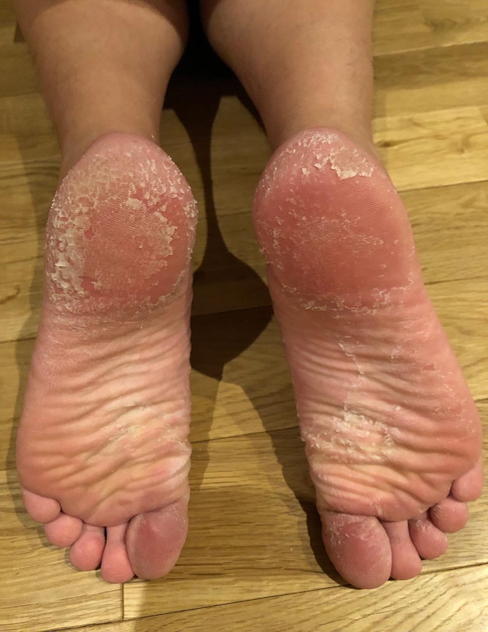 の 裏 むける 風呂 上がり お 足 皮 が