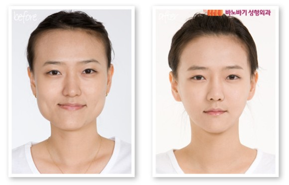 jaw surgery korea