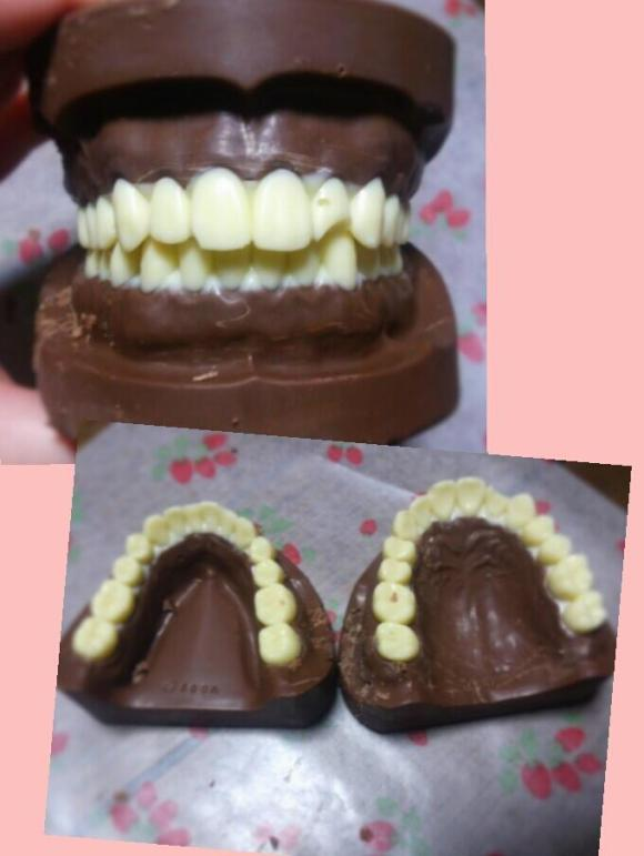 Chocolate teeth