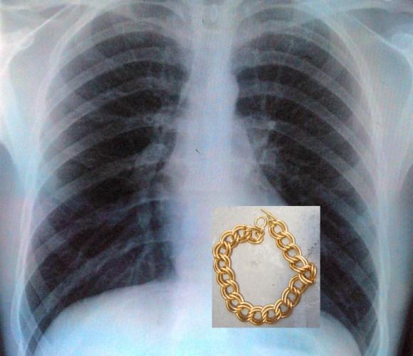 banana thief x-ray