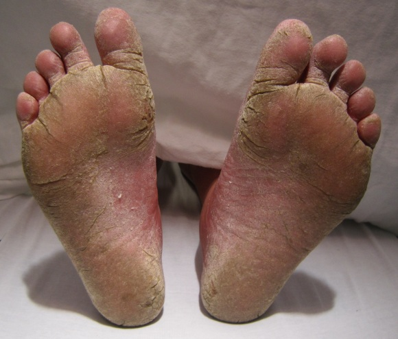 feetfungal